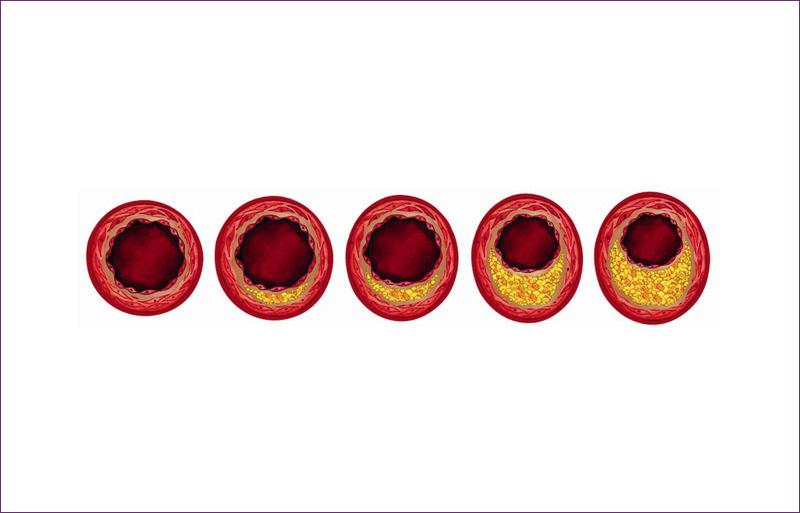 <em>Illustration of the buildup of plaque in arteries.</em> By AstraZeneca.